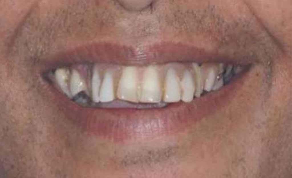 before Dental Implants 11229